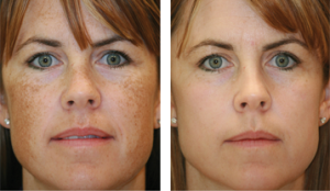 photorejuvenation-body-300x174